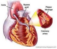 obat penyakit jantung bocor herbal